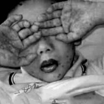 ALERTA SANITARIA POR VIRUS HFMD EN ESTANCIA INFANTIL